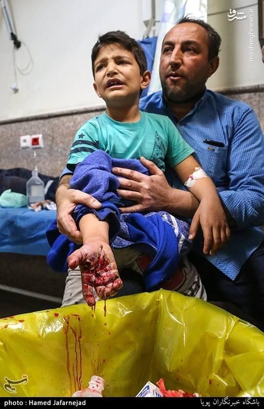 مجروحیت کودک در چهارشنبه اخر سال
