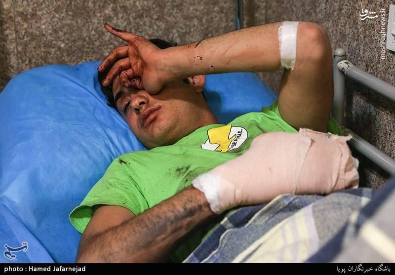 یکی از مصدومان چهارشنبه سوری در اورژانس بیمارستان