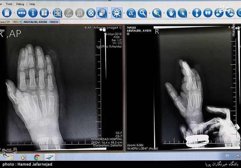 مجروحیت از ناحیه دست