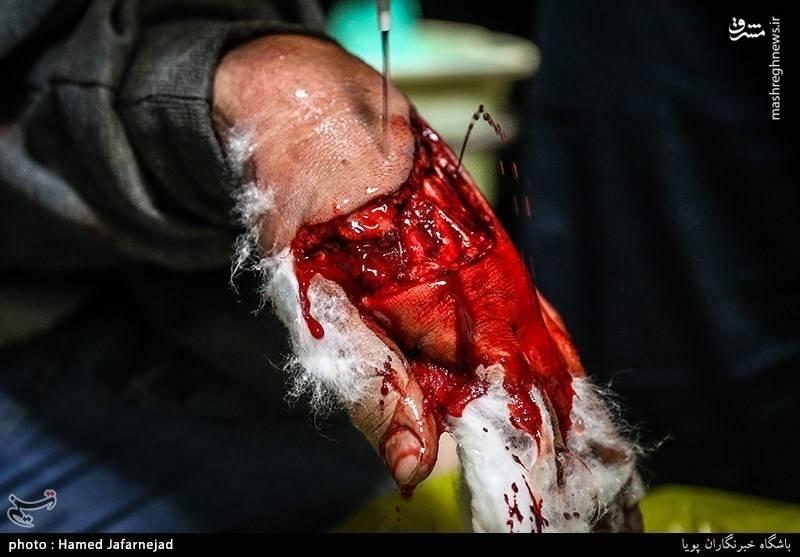 مجروحیت شدید از ناحیه دست