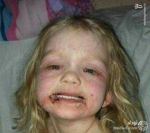 عکس/ بلای وحشتناک لوازم آرایش روی صورت دختر خردسال