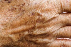 چگونه با بالا رفتن سن از پیری پوست جلوگیری کنیم؟
