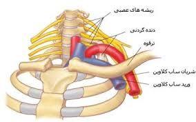 عارضه دنده گردن چیست؟
