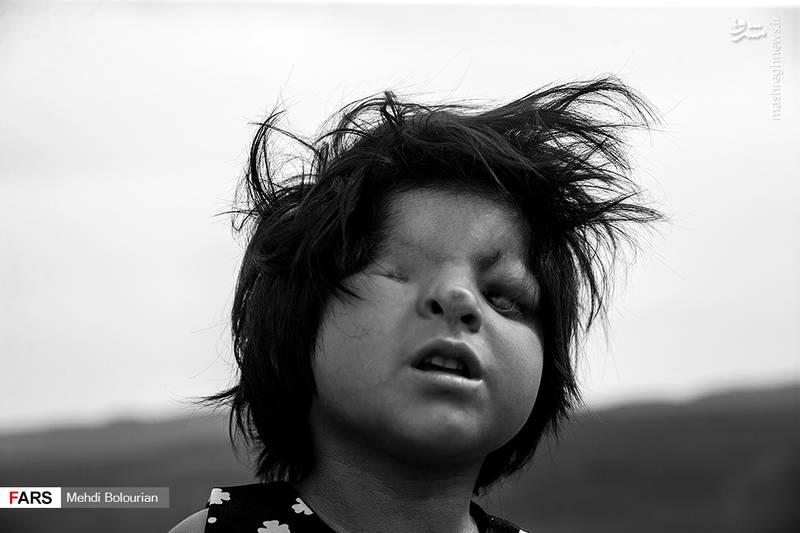 «آیسل اَمری» دختربچه 5 سالهای است که در روستای قوچه سو از توابع شهرستان «مراوهتپه» استان گلستان زندگی میکند.