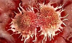 تشخیص سریع سرطان لوزالمعده