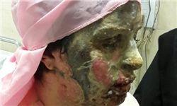 آخرین وضعیت  پرونده اسیدپاشی تبریز
