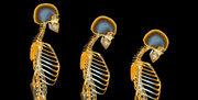 پوکی استخوان سلامت نمایه