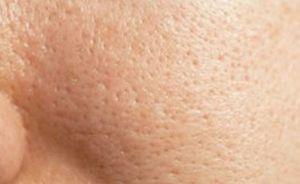 پوست سلامت