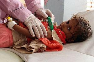 فیلم/ وضعیت اسفبار کودکان در یمن