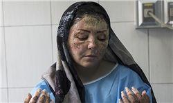 اظهارات پزشک معالج «مریم» قربانی اسیدپاشی در تبریز +فیلم