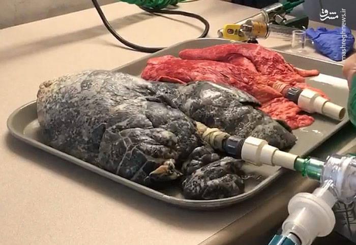 با دیدن این تصاویر به راحتی میتوانید ریههای سالم را تشخیص دهید.
