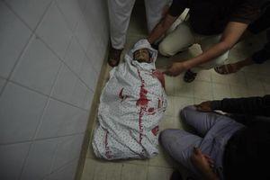 عکس/ پیکر شهدای امروز فلسطین