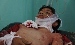 روز خونین یمن +عکس(۱۸+)