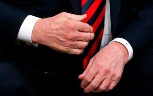 عکس/ جای انگشتان مکرون روی دست ترامپ!