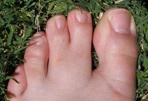 سلامت چسبیدگی انگشتان پا