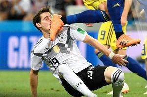 عکس/ لحظه شکستن بینی هافبک آلمان