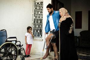 عکس/ افراد نیازمند اعمال جراحی در غزه