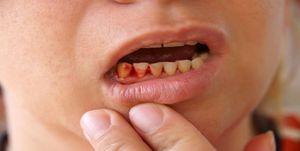علتهای شایع خونریزی لثه حین مسواک زدن