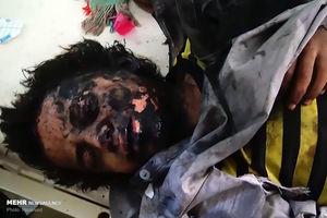 فیلم/ جنایت خونین سعودیها در یمن