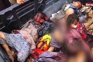 فیلم/ سکوت مرگبار در قبال جنایت آل سعود!