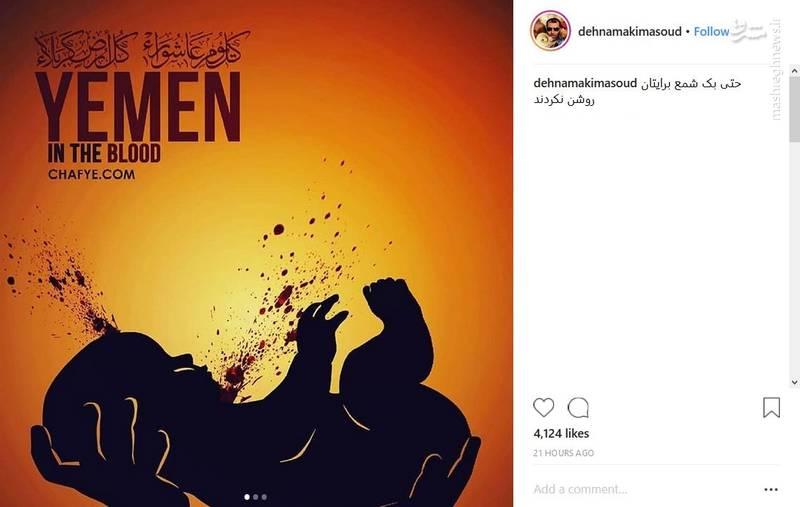 واکنش ده نمکی به شهادت کودکان یمنی
