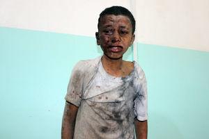 عفو بینالملل: عربستان مرتکب جنایت جنگی شده است