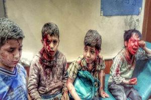 فیلم/ هر 10 دقیقه یک کودک یمنی می میرد!