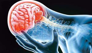 مغز نمایه سکته مغزی