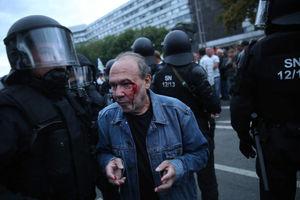 عکس/ درگیری خونین تظاهرات کنندگان  آلمانی