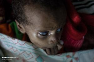عکس/ بحران گرسنگی در چاد