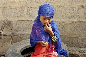 گزارش آسوشیتدپرس از غذای عجیب کودکان یمنی