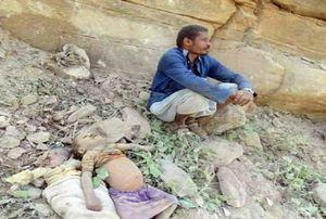 عکس/ تلخترین تصویر از جنگ یمن(+15)