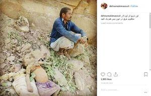 تصویری تکاندهنده در اینستاگرام «مسعود دهنمکی»