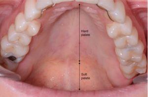 دهان و دندان نمایه تورم سقف دهان