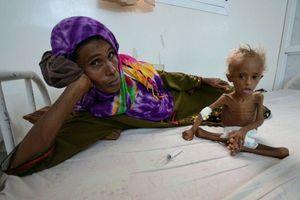 همزمان با خواندن این گزارش یک کودک یمنی از گرسنگی جان میدهد +فیلم و عکس