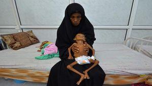 یمن؛ مرگ یک کودک در هر ۱۰ دقیقه