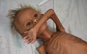 چرا سلبریتیها از کودکان یمنی حرف نمیزنند؟