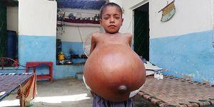 بیماری نادر پسر ۹ ساله +عکس