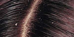علت شوره سر چیست؟
