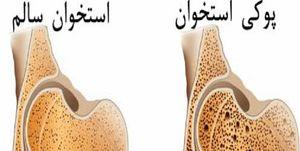 ۲ راهکار اصلی پیشگیری از پوکی استخوان