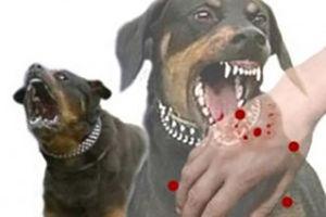 فیلم/ حمله سگ ولگرد به دختربچه!