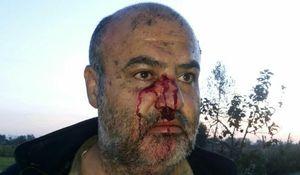 مجروحیت یک محیطبان در درگیری با شکارچیان غیرمجاز +عکس