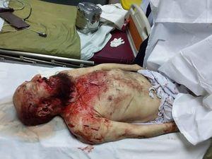 عکس/ پدر معنوی طالبان با چاقو کشته شد (18+)