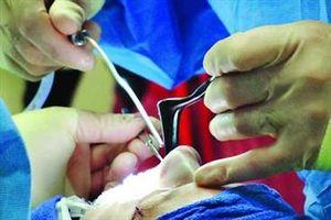 مشکلترین قسمت بدن در جراحی پلاستیک کدام است؟