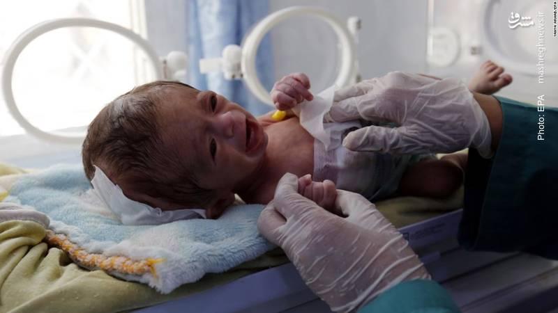 کودکی در صنعا که با سوتغذیه به دنیا آمده است. یونسیف اعلام کرده از هر سه نوزاد یمنی، یکی در معرض سوءتغذیه قرار دارد. این جنگ با حمایت باراک اوباما آغاز شد.