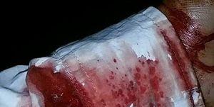 حمله به ۲ طلبه نیشابوری با چاقو +عکس