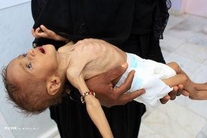 سعودیها هفت هزار و ۵۰۰ کودک یمنی را کشتند