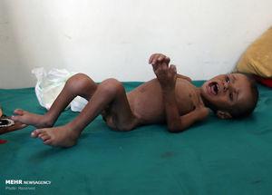"""""""یمن""""، نام کودک تازه متولد شده فلسطینی +عکس"""