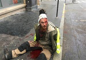 ۳۰ زخمی در درگیری پلیس با جلیقه زردها +عکس
