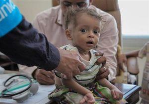 امیرعبداللهیان خواستار پایان محاصره انسانی یمن شد